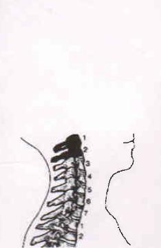 Главная - Формируем голову ка краниальными ортезами